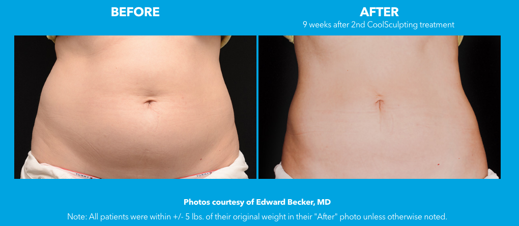 Non-Surgical Fat Reduction | CoolSculpting | Riverside |Freeze the Fat